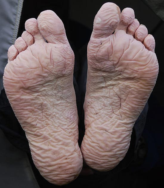 The soles of two feet showing the beginnings of trench foot