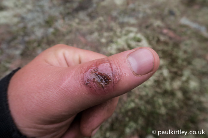 Wound with balsam fir on it
