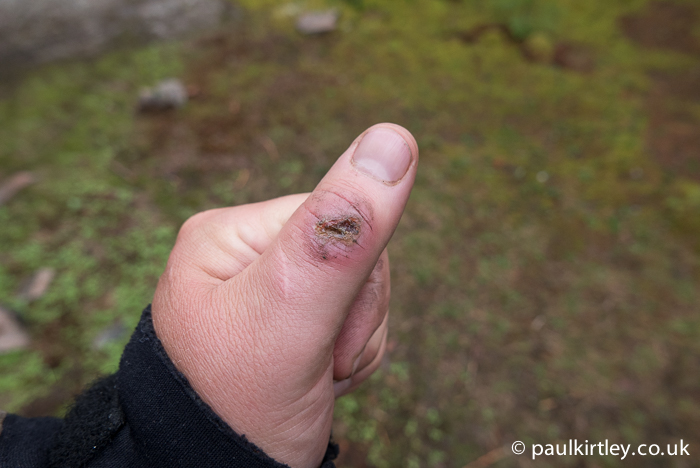 Sore grazed thumb
